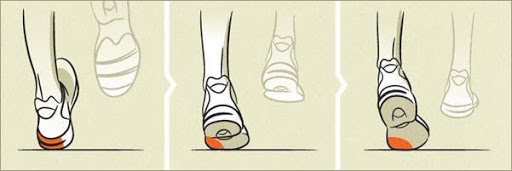 Underpronation (also known as supination)